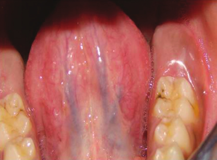 Figure 1: Preoperative picture showing eruption cyst with respect to left lower second molar region