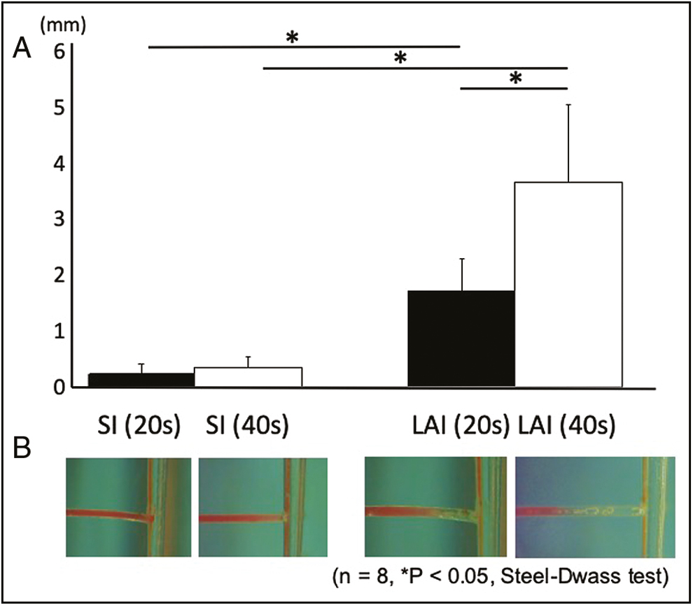 Figure 2: Graphic representation of the distance in millimeters over which the hydrogel had been removed after irrigation (A). Representative photographs (B). <i>n</i> = 8, *<i>P</i> < 0.05, Steel–Dwass test. SI = syringe irrigation, LAI = laser-activated irrigation